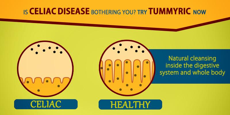 Tummyric helps in celiac disease naturally