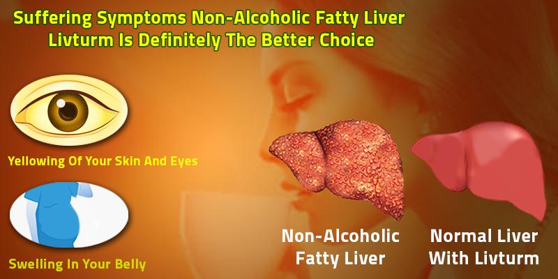 Livturm for non-alcoholic fatty liver disease